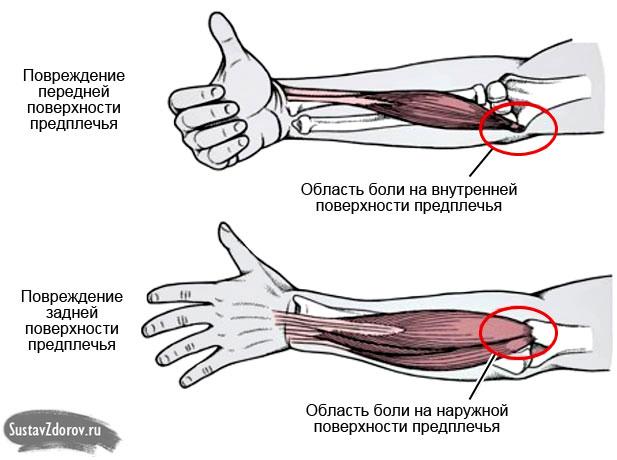 Schmerzen im Ellenbogengelenk bei Flexion und extension: Ursachen ...