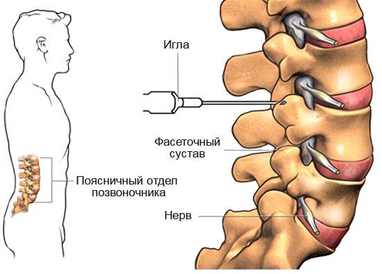 Welche Medikamente zur Behandlung der Osteochondrose?