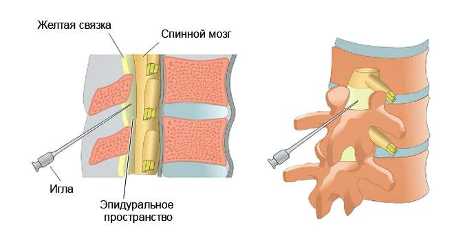 Präparate zur Behandlung der Osteochondrose der Lendenwirbelsäule