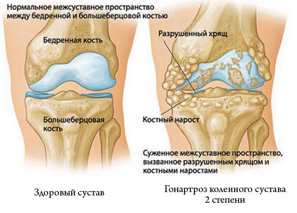 Neue Leitlinie zur Behandlung von Gonarthrose