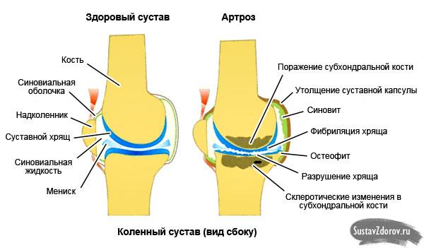 Arthroseschmerzen