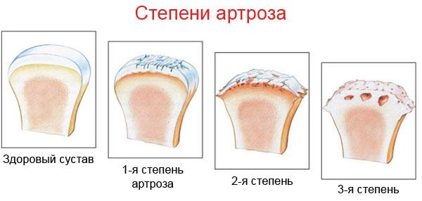 Vier Schweregrade der Arthrose
