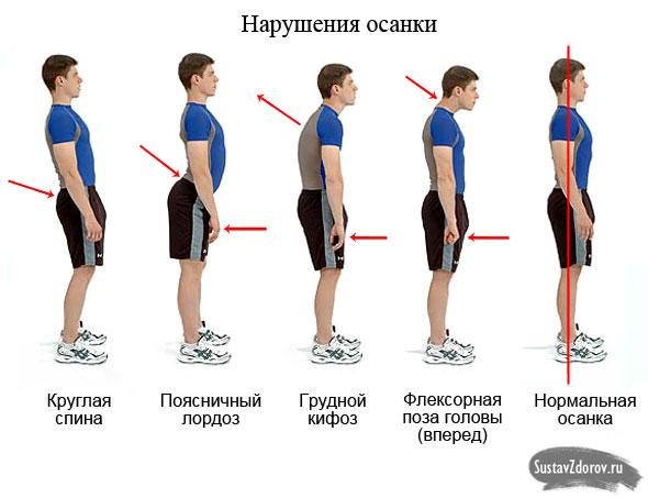 Falsche Körperhaltung Symptome