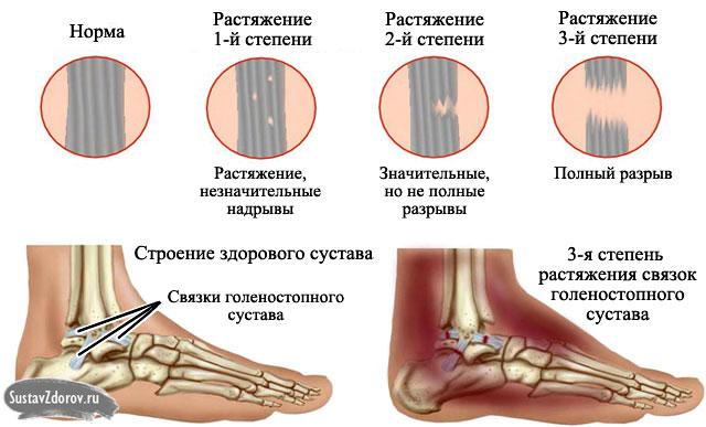 Bänderriss im Sprunggelenk: Behandlung, Ursachen, Typen und Symptome.