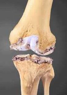 Arthrose der großen Gelenke, Hüfte, Knie, Schulter