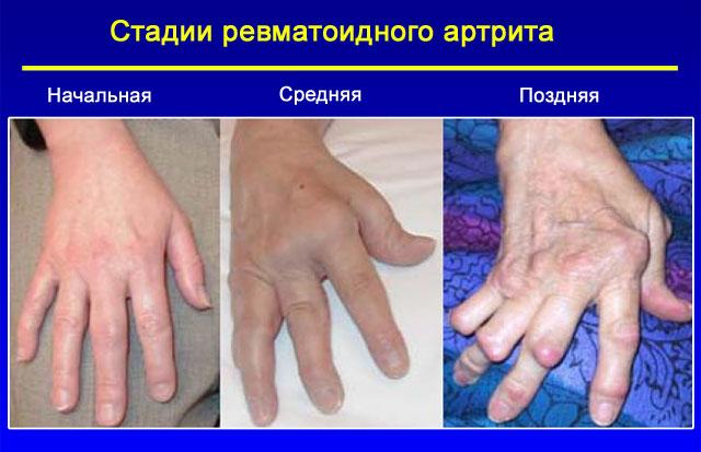 Behandlung von Nagelpilz Volksmedizin