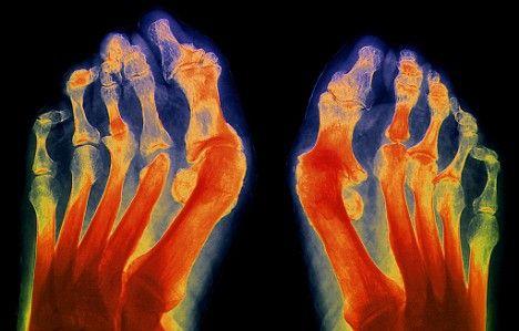 Stretching bänder behandlung der volksmedizin