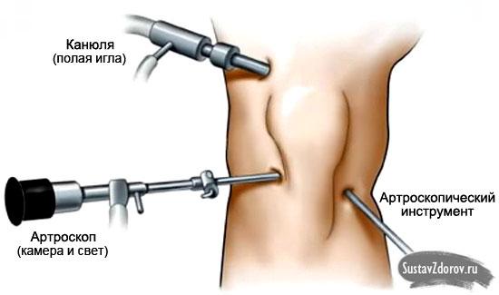 Arthrose des Kniegelenks 1. Klasse: Behandlung und Symptome