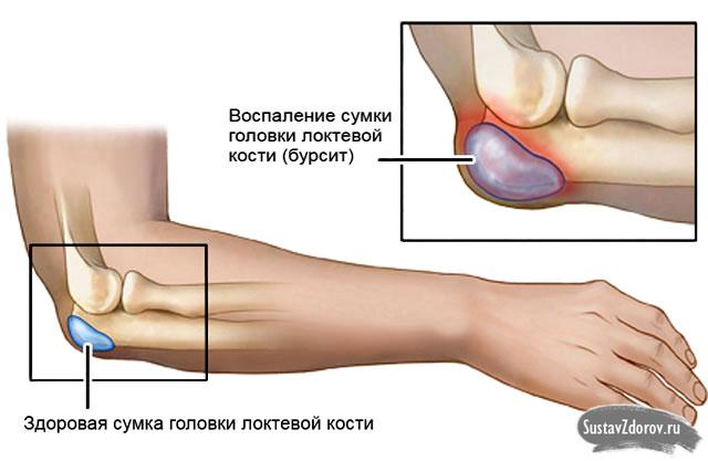 Entzündung des Ellenbogenschleimbeutels (Bursitis olecrani)