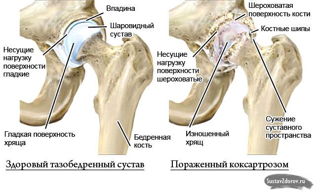 Coxarthrose des Hüftgelenks: Symptome und Behandlung-Ursachen der ...