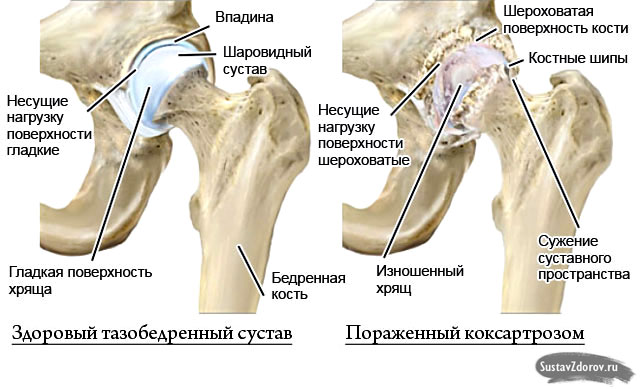 Diagnose der Gelenkerkrankung: Rheuma, Arthrose, Gicht - Gelenke im Check