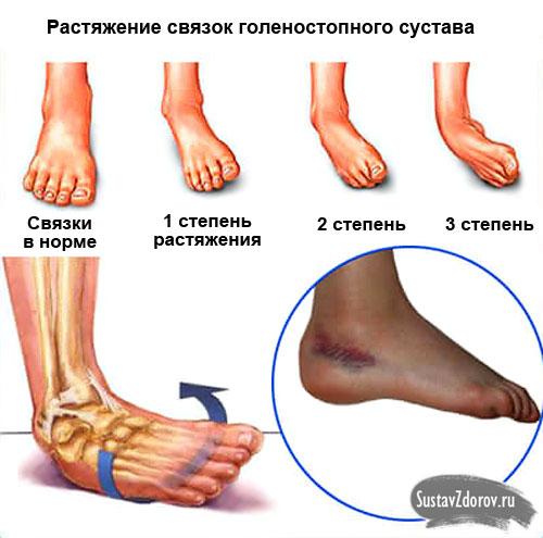Knöchel-Verstauchung: Behandlung, Symptome und Ursachen, erste Hilfe