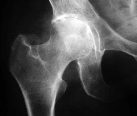 Verunsichert wegen Diagnose Coxarthrose